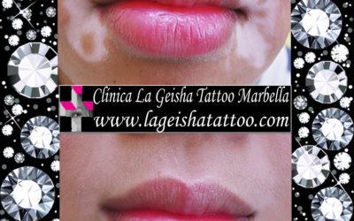 Amazing vitiligo removal