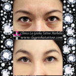 Unbelievable eye bags and dark circles removal